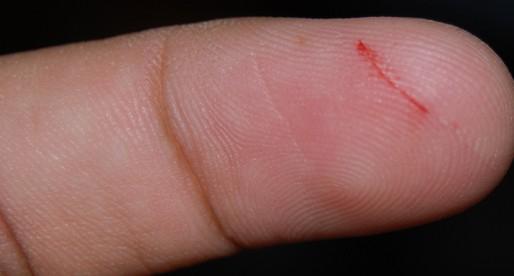¿Por qué duelen tanto las cortadas con papel?