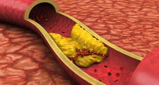 Colesterol, no tan malo como parece