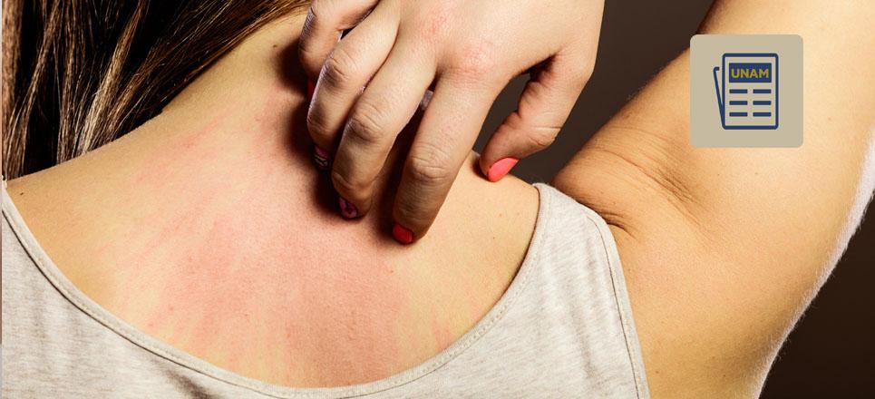 UNAM descubre posible solución al dolor y comezón crónicos