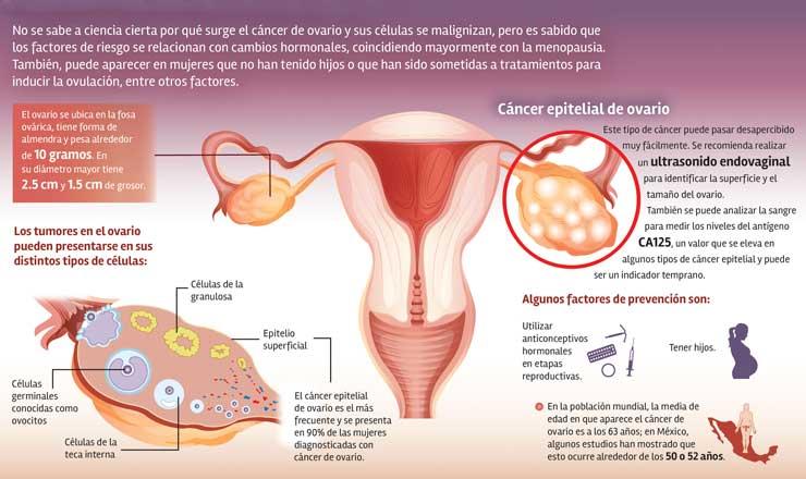 cancerOVARIO3