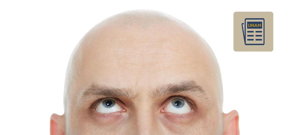 Alopecia: enfermedad angustiante