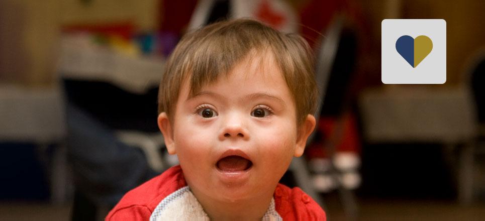 En México, uno de cada 700 recién nacidos presenta síndrome de Down